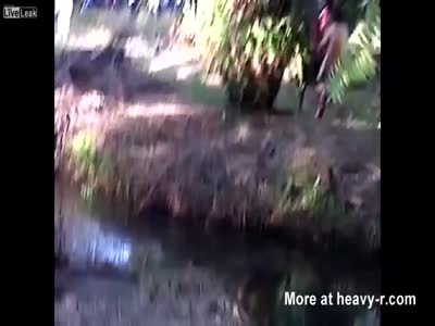 Crocodile Bites Of Man's Leg