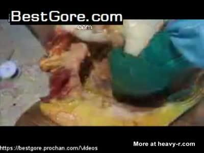 Vagina autopsy