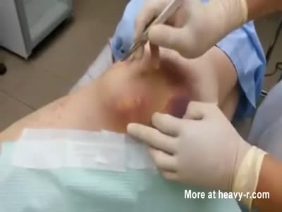 Grape Jelly Abscess