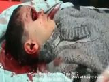 Syrian sniper shoots child's eye out