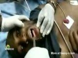 retrieving phone from man's throat