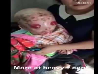 Asian Child with Harlequin Ichthyosis