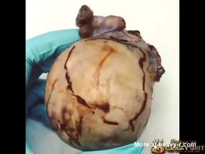 Teratoma Tumor Cut Open