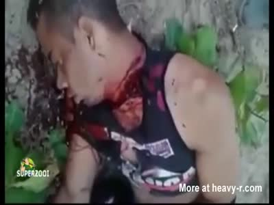 Blood Gushes From Neck Wound