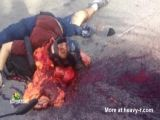 Motorcyclist inside out after accident