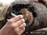 Nasty maggot infected head wound