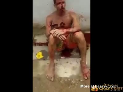 Tortured By Cops
