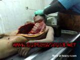 Autopsy Video