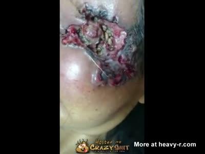 Maggots Eat Eye