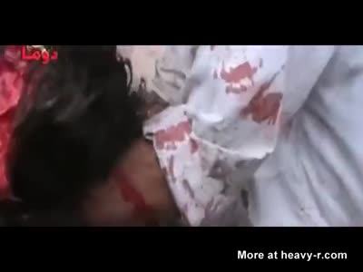 Girl's head gone after bomb blast