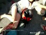 Leg blown off in a motorcycle accident