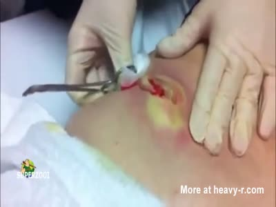 Draining A Monster Pimple