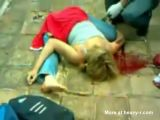 Girl With Nasty Broken Back