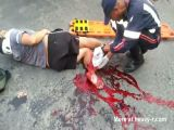 Bad Leg Injury After Motorcycle Accident