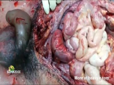 Blue Penis Autopsy