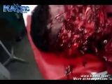 Machete Attack Aftermath