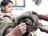 Maggot infested headwound