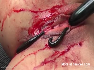 Leeches Sucking Blood From Pussy
