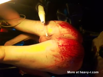 Mistress In Extreme Bloody Torture