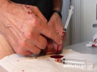 Removing Two Needles