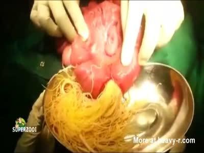 Man's Intestines Blocked With Parasite Infestation