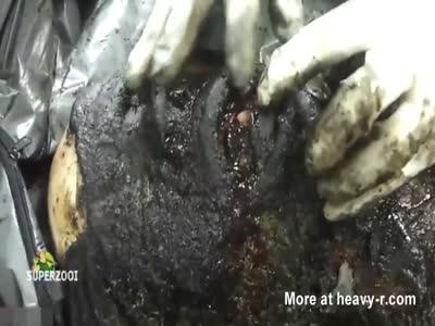 Charcoaled Body Autopsy