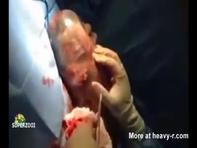 Baby born inside amniotic sac