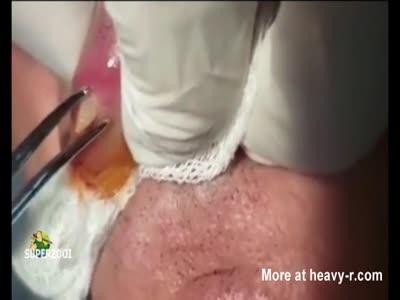 Worm Taken From Lip