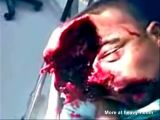 Head Split In Two But Alive