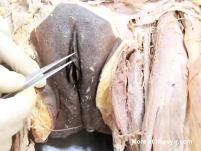 Anatomy Dissection of Vagina-> [1:45x432p]-> [1:45x432p]-> [1:45x432p]->