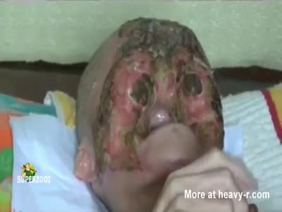 Face Eaten Away By Cancer