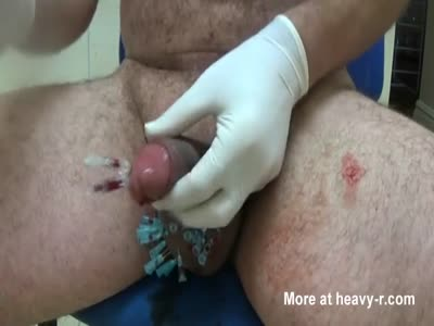 CBT Needles into balls