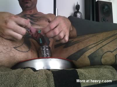 Removing the needles