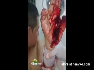 Left Hand Split