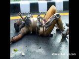 Burnt Woman Still Alive
