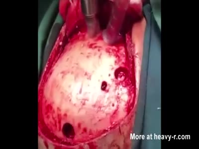 BRAIN HEMORRHAGE SURGERY