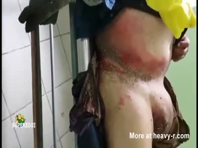 Infected Belly And Balls
